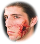 Prothèse blessure